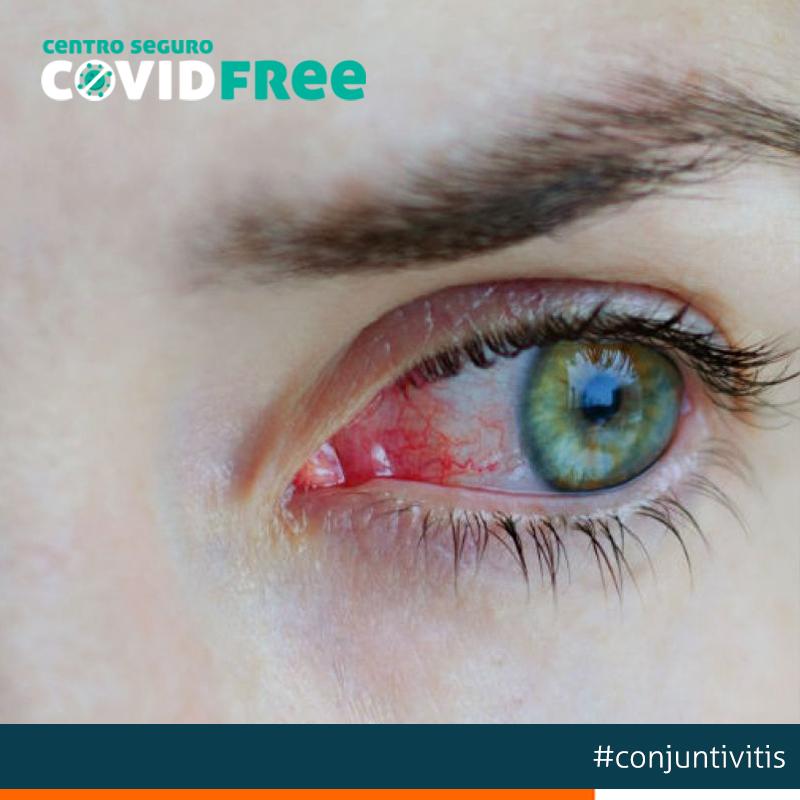 conjuntivitis-alergica
