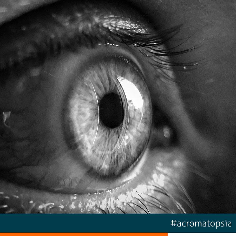 acromatopsia-enfermedad