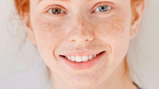 heterocromia-ejemplo